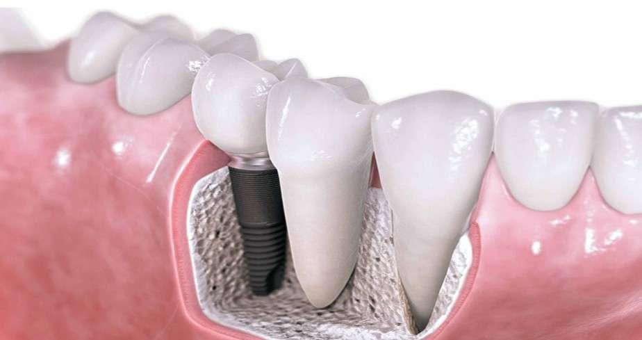 Z zobnimi implantati do ponovno lepega nasmeška